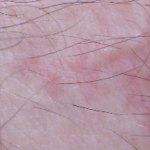 skin shortly after bed bug bite