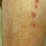 bed bug bite pattern