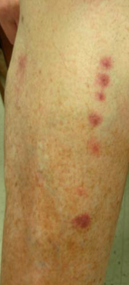 bed bug bites pictures