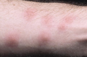 what do bed bug bites look like