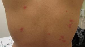 bed bug bites on back pictures