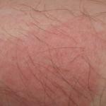 2 days later bed bug bite rash